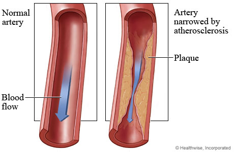 how plaque builds up in the walls of arteries...